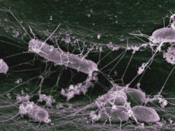 О пользе домашних микробов